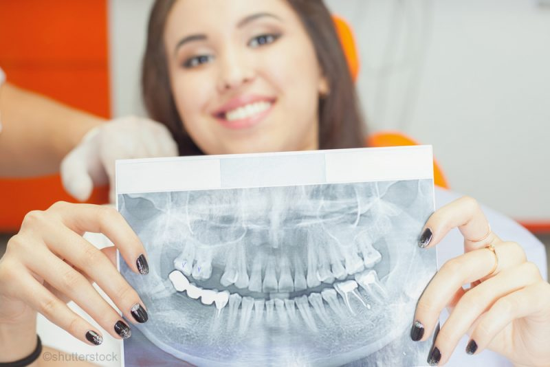 woman holding an x-ray of her teeth