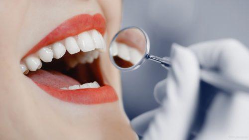 dental exam July