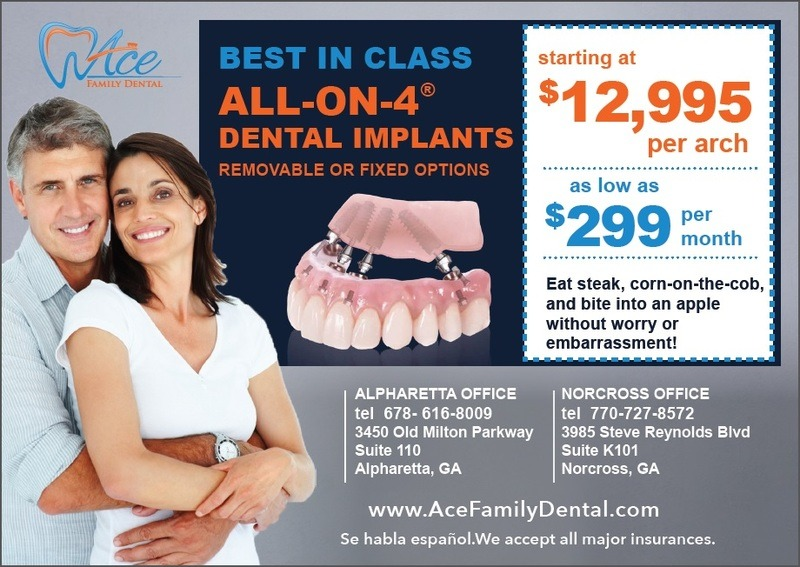 Alpharetta All-On-4® Dental Implant