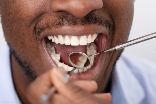healthy gums being examined by dentist